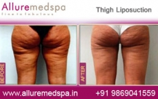Thighs Lipo Before After Photos