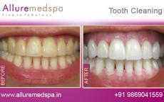Teeth Cleaning Treatment Before After Photos