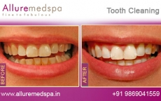 Dental Cleaning Treatment Before After Photos