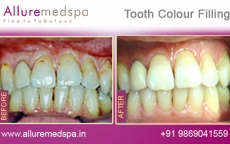Tooth Color Filling Before After Photos