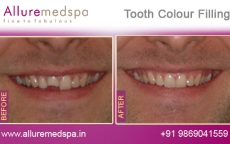 Teeth Filling Before After Photos