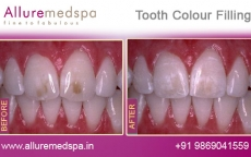 Dental Filling Treatment Before After Photos