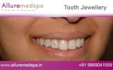 Tooth Jewellery Treatment Before after Photos
