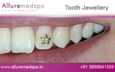 Teeth Jewellery Treatment Before after Photos
