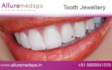 Dental Jewellery Treatment Before after Photos
