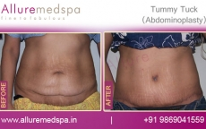 Abdominoplasty Before and After Gallery Mumba India