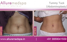 Abdominoplasty Before and After Images Mumba India