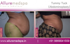Tummy Tuck Before and After Pics Mumbai, India
