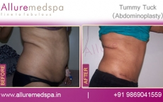 Abdominoplasty Before and After Results Mumbai, India