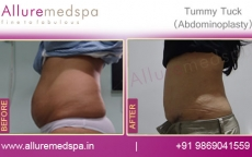 Tummy Tuck Surgery Before and After Pictures Mumbai, India
