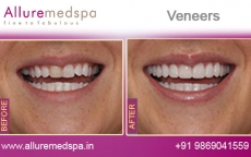 Teeth Veneers Treatment Before After Photos