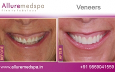 Tooth Veneers Treatment Before After Photos