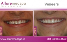 Dental Veneers Treatment Before After Photos