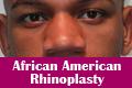 African American Rhinoplasty