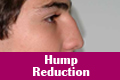Hump Reduction Mumbai india