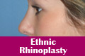 Ethnic Rhinoplasty Mumbai India