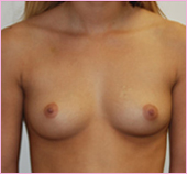 Front View of Breast Implants | Breast Augmentation