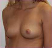 Oblique View of Breast Implants | Breast Augmentation