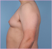 Gynecomastia Right View