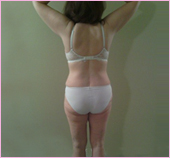 back view of liposuction