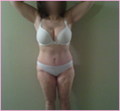 Front View of Tumescent Liposuction