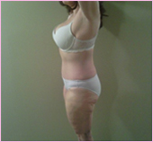 right view of liposuction
