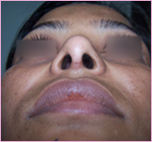 Rhinoplasty Base View