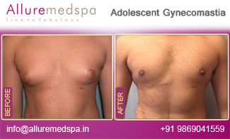 Adolescent Gynecomastia Before and After in Mumbai, India