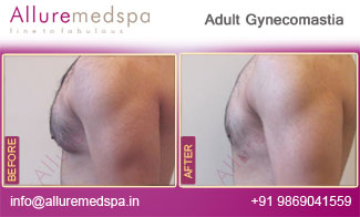 Adult Gynecomastia Surgery Before and After Photos, Photo gallery, Pictures, Images, Pics, in Mumbai, India
