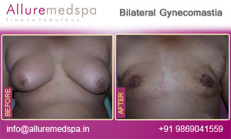 Bilateral Gynecomastia Before and After