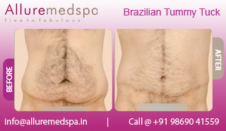 Brazilian Tummy Tuck Before and After in Mumbai, India
