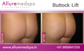 Buttock Lift Before and After in Mumbai, India