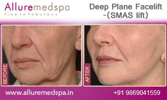 Deep Plane Facelift Before and After in Mumbai, India