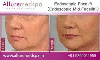 Endoscopic Facelift Before and After in Mumbai, India