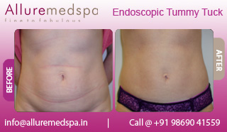 Endoscopic Tummy Tuck Before and After in Mumbai, India