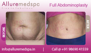 Post Pregnancy Full Tummy Tuck Before and After Pictures at Affordable Cost in Mumbai, India