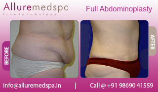 Female Full Abdominoplasty Before and After Gallery by Celebrity Cosmetic Surgeon Dr. Milan Doshi in Mumbai, India