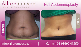 Female Full Tummy Tuck Before and After Photos by Celebrity Cosmetic Surgeon Dr. Milan Doshi in Mumbai, India
