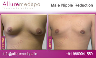 Male Nipple Reduction Before and After in Mumbai, India