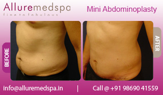 Mini tummy before after