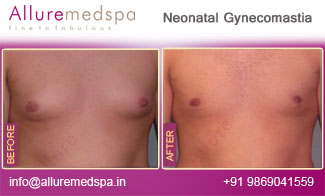 Neonatal Gynecomastia Surgery Before and After Photos, Photo gallery, Pictures, Images, Pics, in Mumbai, India