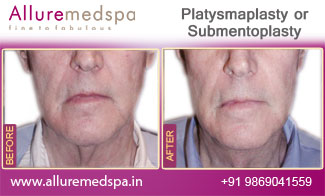 Platysmaplasty Before and After in Mumbai, India