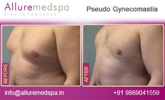 Pseudo Gynecomastia Before and After in Mumbai, India