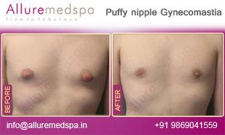 Puffy Nipple Gynecomastia Before and After in Mumbai, India