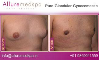 Pure Glandular Gynecomastia Before and After in Mumbai, India