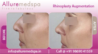 Nasal/ Dorsal Hump Reduction Rhinoplasty Before and After, Mumbai, india