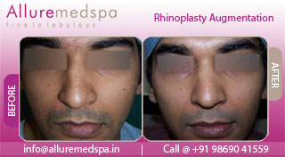 Rhinoplasty Implants Before and After in Mumbai, India