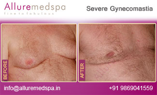 Severe Gynecomastia Before and After in Mumbai, India