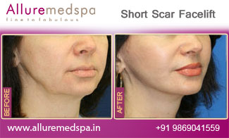 Short Scar Facelift Before and After in Mumbai, India