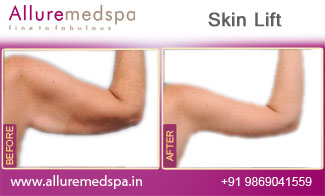 Skin Lift Before and After Images at Reasonable Price in Mumbai, India